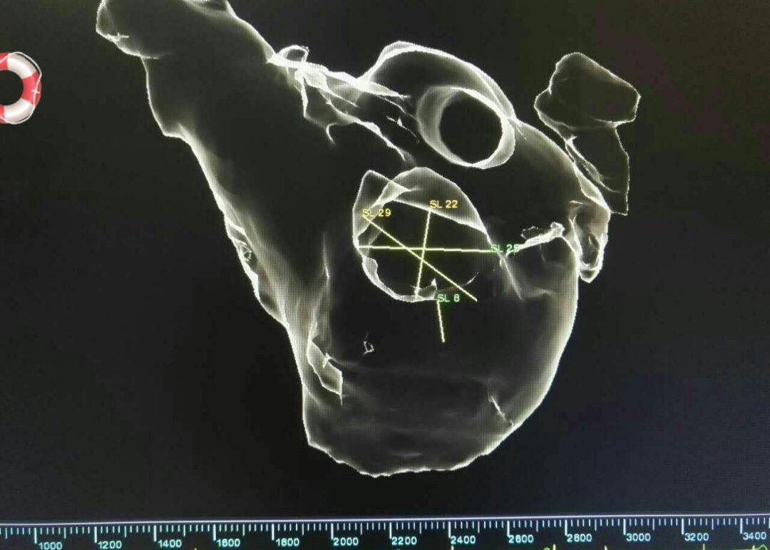 三维系统中显示左房及左心耳结构及大小